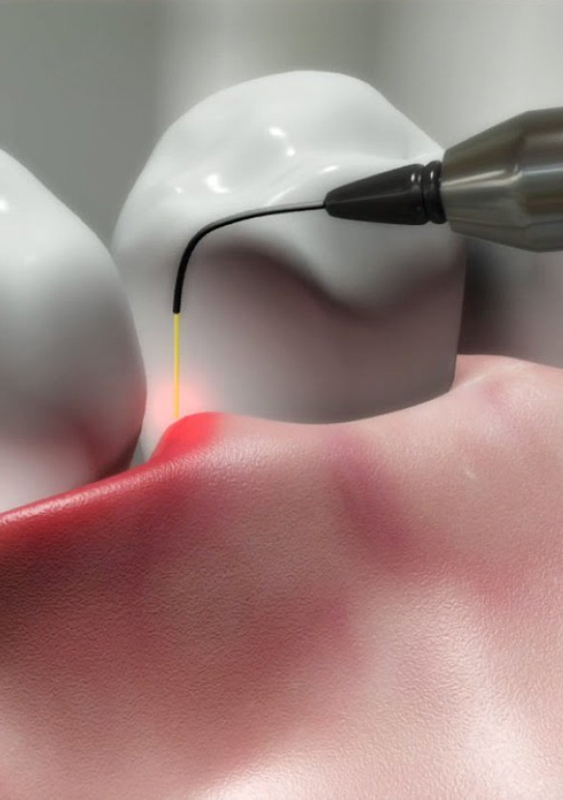 Parodontologo Roma